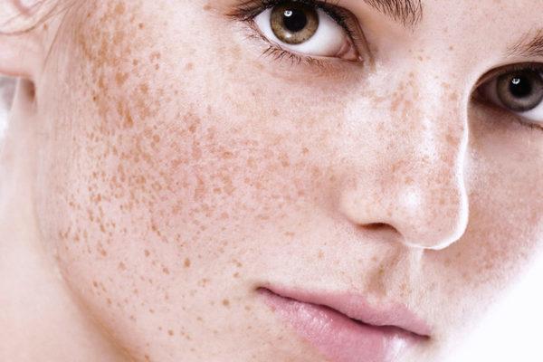 Osvetljaem pigmentnye pjatna na lice